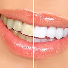 Enblanquiment dental